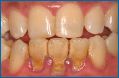 Solution For Gingival Recession