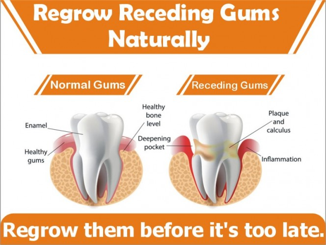 Can Receding Gums Be Reversed Naturally At Home