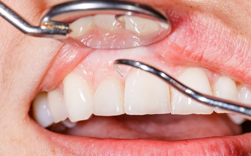 Natural Way of Curing Gum Disease