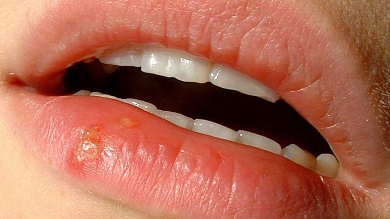 Cold Sore or Canker Sore?