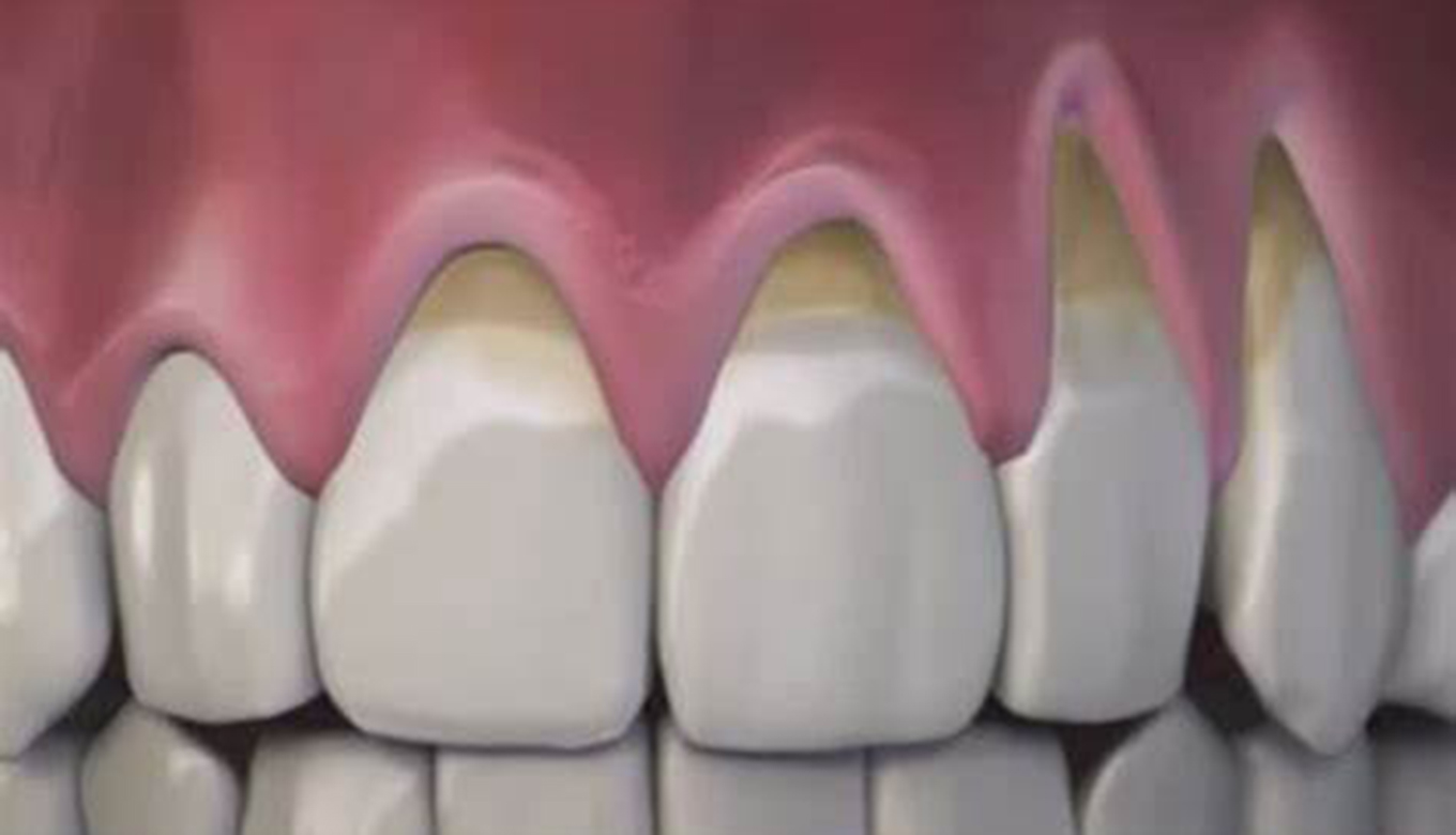 How To Heal Receding Gums At Home?